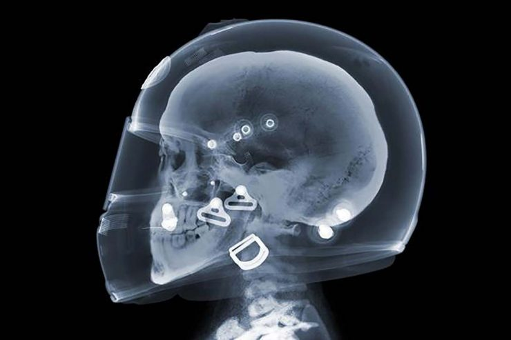 Motorcycle Helmet X-Ray