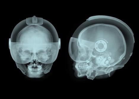 helmet-x-ray